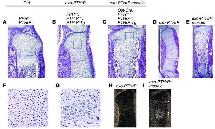 Ectopic hypertrophic chondrocytes induced column formation in the growth...