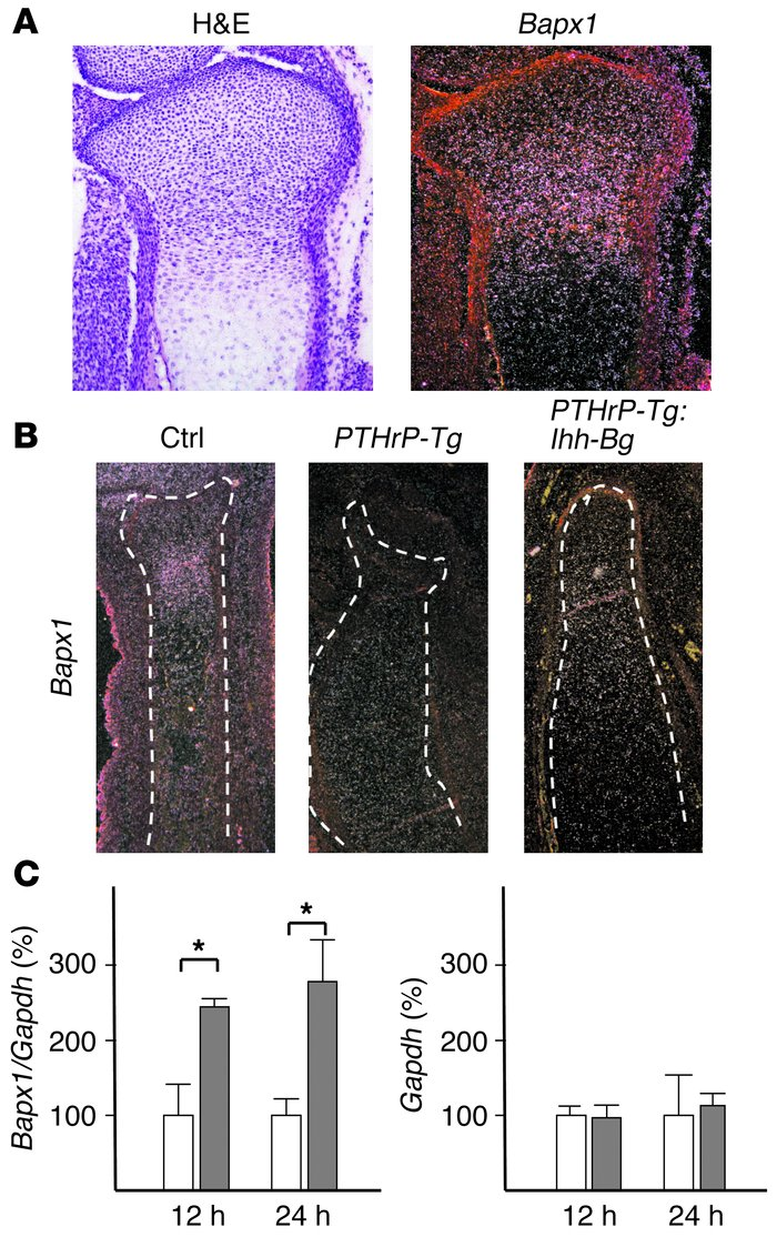 Hedgehog overactivation in periarticular chondrocytes stimulates differe...