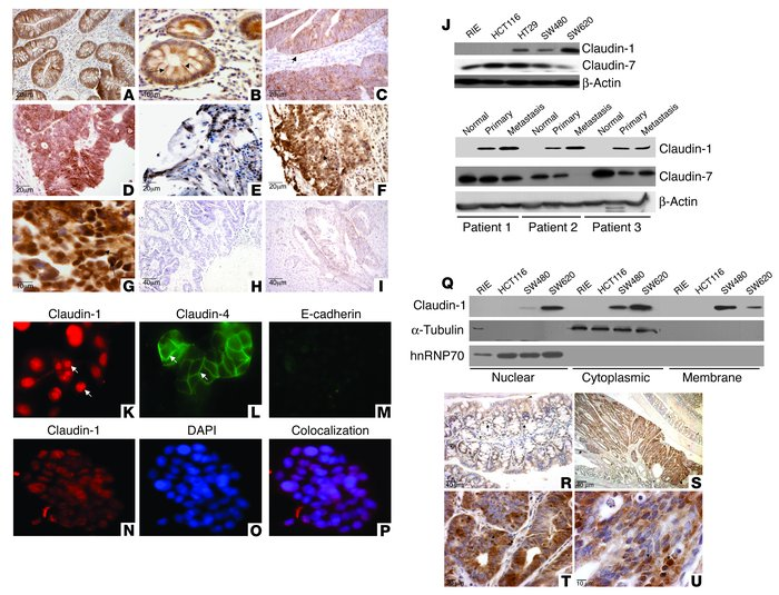 Claudin-1 expression increases in colon carcinoma and metastasis. (A–I) ...