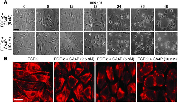 CA4P induces retraction of endothelial cells and disrupts actin cytoskel...