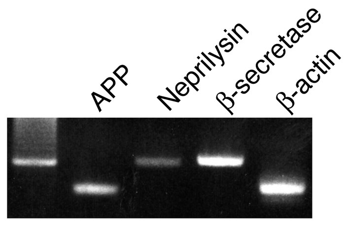 RT-PCR detection of APP, neprilysin, and β-secretase in human RPE cells....