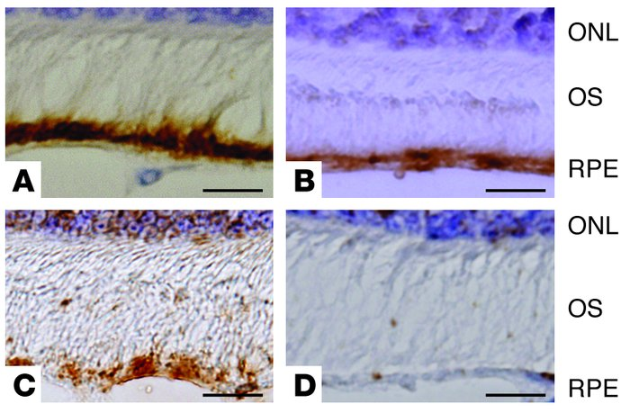 Immunohistochemical detection of APP, neprilysin, and β-secretase in the...