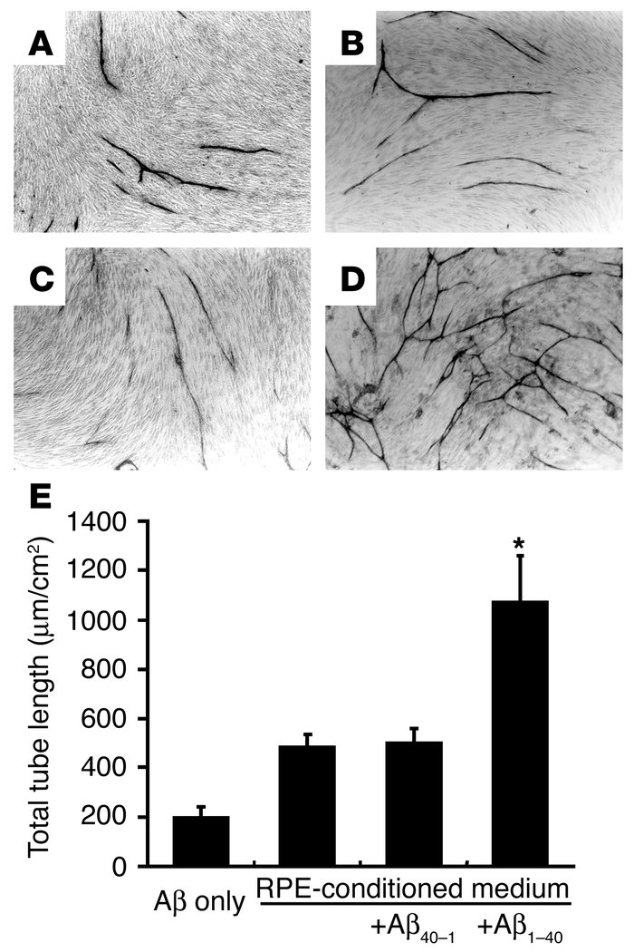 Effects of the conditioned media from RPE on in vitro angiogenesis. HUVE...