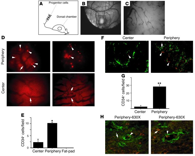 Human CD34+ progenitor cells home to peripheral tumor vasculature. (A) N...