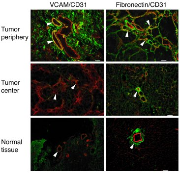 Integrin α4β1 ligands are preferentially expressed at the tumor peripher...