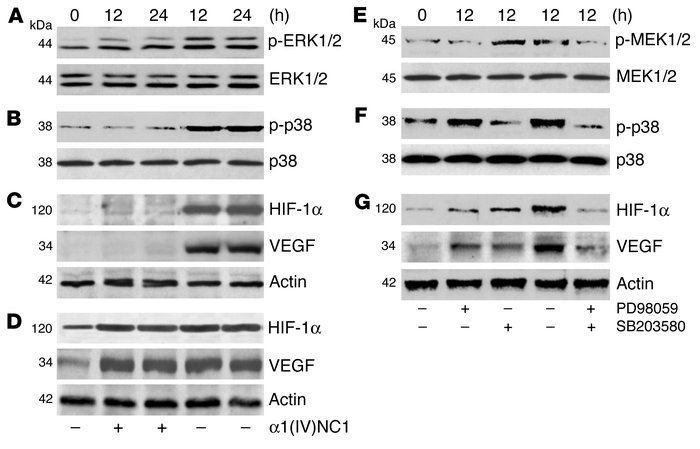 Effect of α1(IV)NC1 on hypoxia-induced HIF-1α and VEGF expression. Serum...