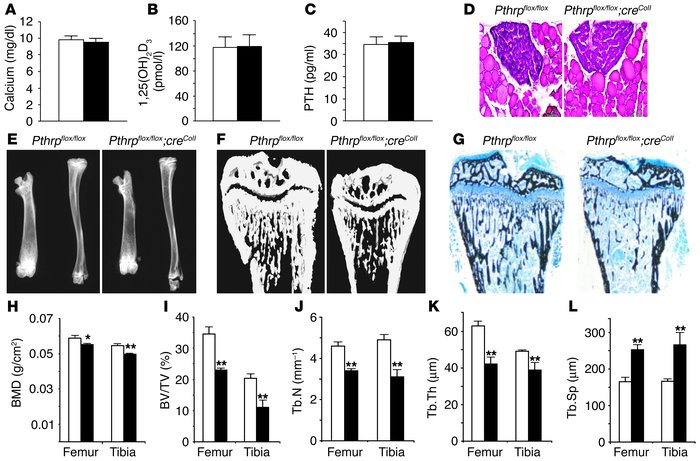 Osteoblast-specific Pthrp ablation reduces BMD and trabecular bone volum...