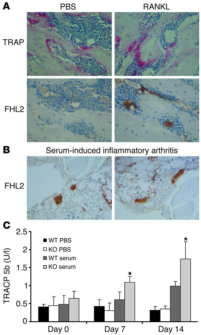 FHL2 is expressed only in activated osteoclasts. (A) WT mice were admini...