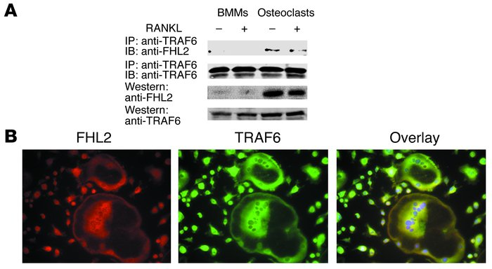 FHL2 interacts with TRAF6 in osteoclasts. (A) WT BMMs and day 4 osteocla...