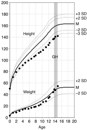 Height (cm) and weight (kg) curves of the proband (family 1, patient II2...