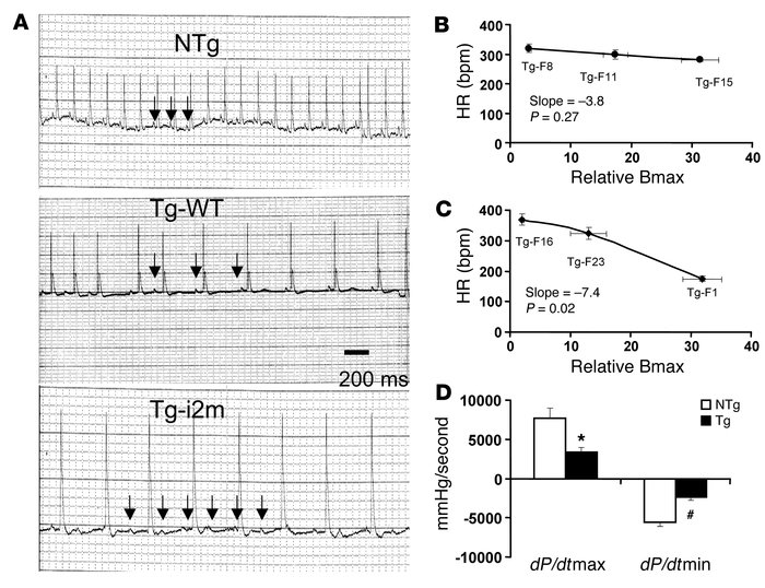 Bradycardia, AV block, and LV function. (A) Representative lead II ECG o...