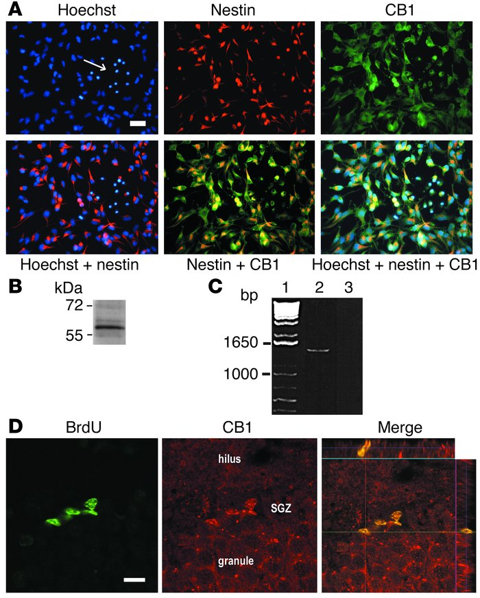 Expression of CB1 receptors in NS/PCs. (A) Coimmunofluorescent staining ...