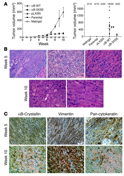 MCF-10A cells overexpressing αB-crystallin form invasive mammary carcino...