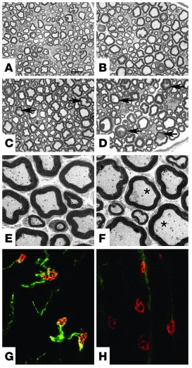 Peripheral neuropathy in Spg7–/– mice.                 (A–D) Semithin se...