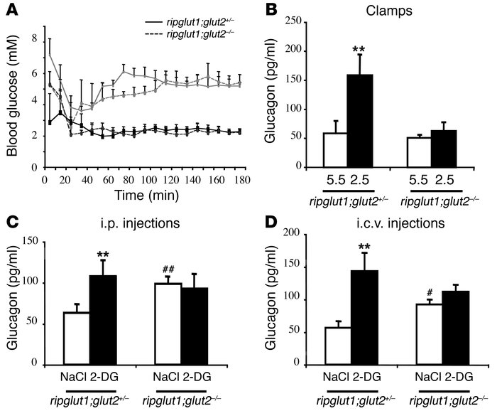 Suppression of glucagon secretion in response to physiological hypoglyce...
