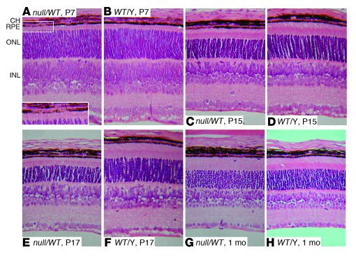 Histological analysis of Chm mutant retinas during development.         ...