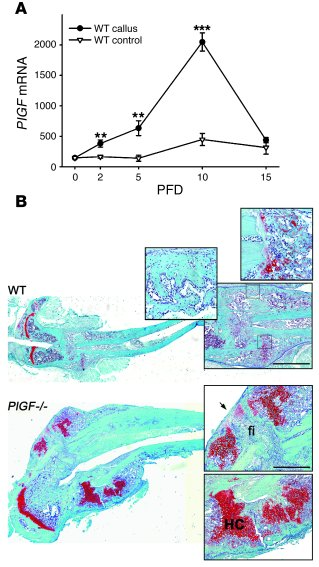 Impaired fracture healing in PlGF-deficient mice. (A) Temporal analysis ...