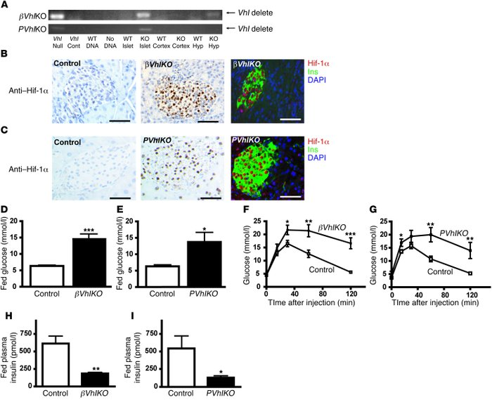 Deletion of Vhl in β cells or the pancreas                   impairs glu...