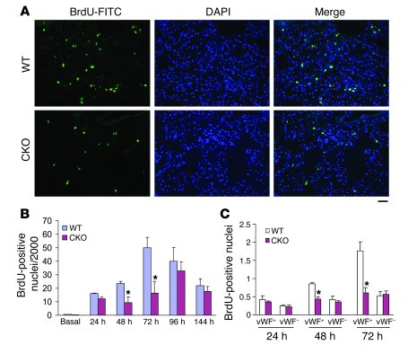 Decreased cell proliferation in FoxM1                   CKO lungs follow...