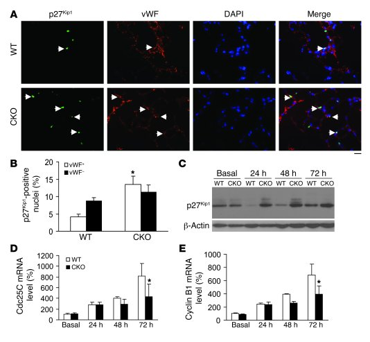 Increased nuclear staining and expression of p27Kip1 and decreased expre...