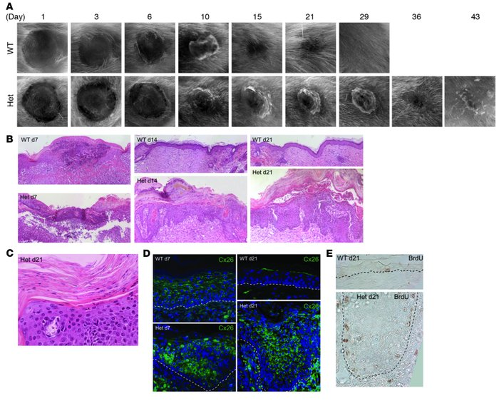 Heterozygous Inv-Cx26 mice reepithelialize wounds but fail to remodel an...