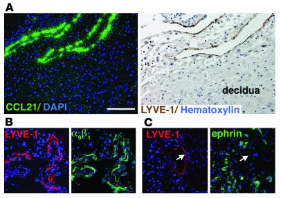 LYVE-1–positive vessels in the human decidua express other markers of ly...