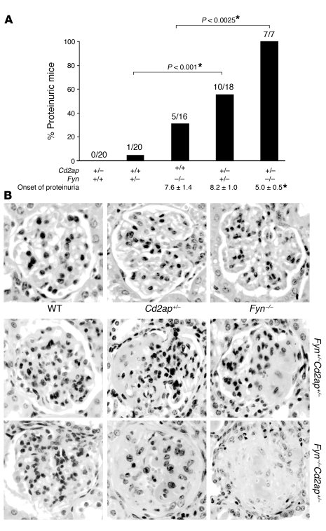 CD2AP haploinsufficiency enhances proteinuria in Fyn-deficient mice. (A)...