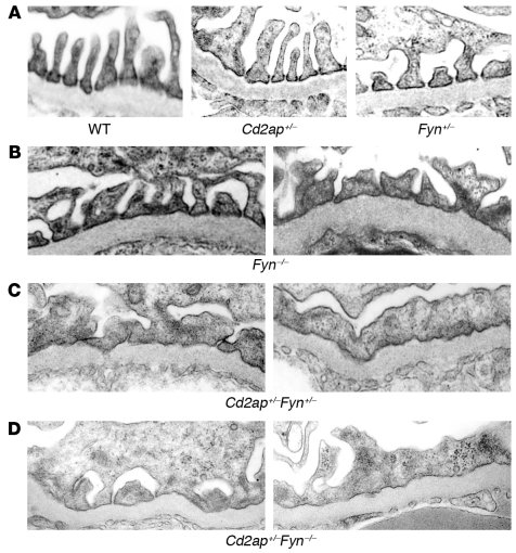 Electron micrograph images from combined heterozygous mice between Cd2ap...