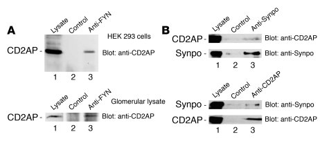 CD2AP forms an endogenous complex with Fyn and Synpo. (A) Endogenous CD2...