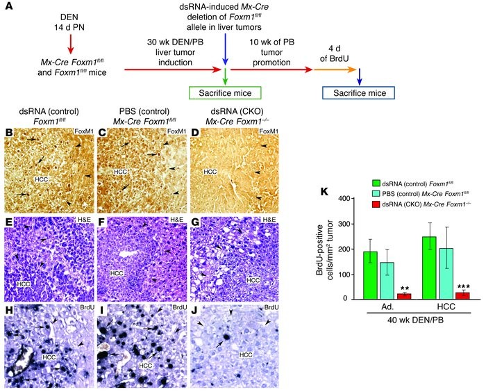 The mouse Foxm1 transcription factor is required for hepatic tumor progr...