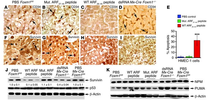 WT ARF26–44 peptide reduces angiogenesis and survivin expression in mous...