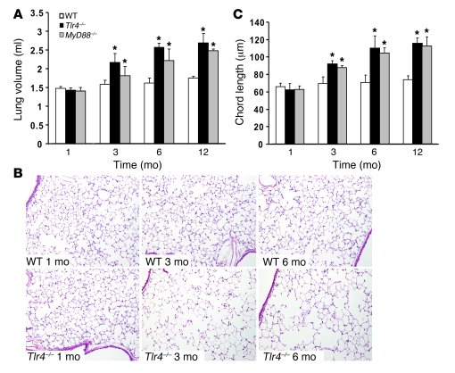 Spontaneous pulmonary emphysema in Tlr4–/– mice.                 (A) Lun...
