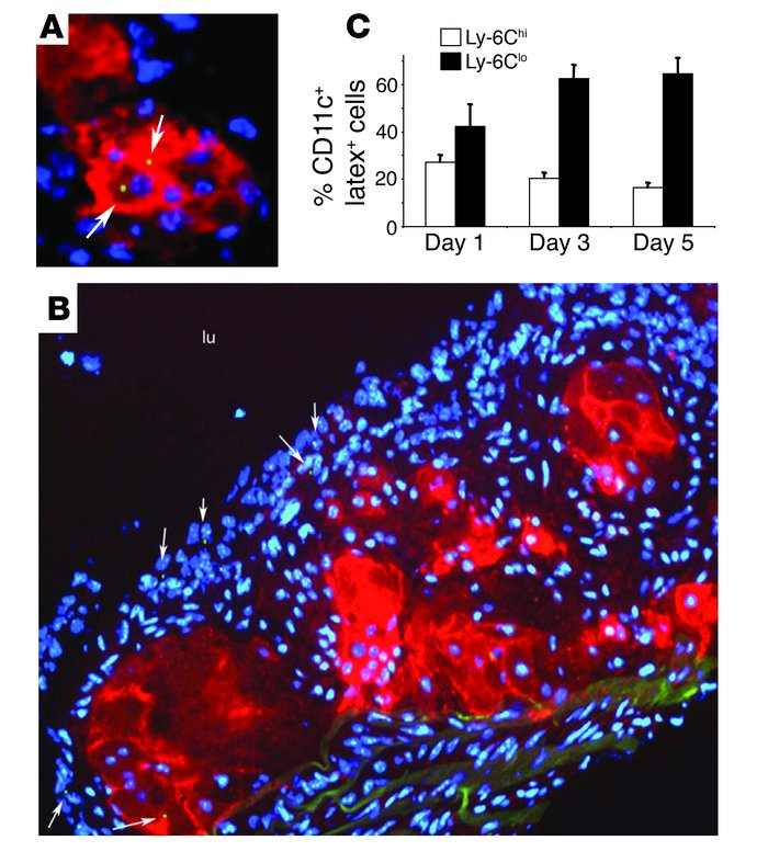 Phenotype of invading monocytes within atherosclerotic lesions of apoE–/...