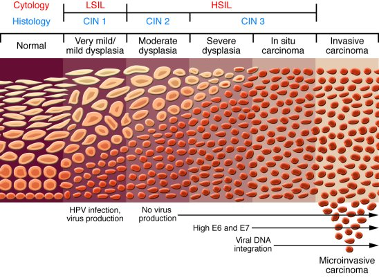 Progression From A Benign Cervical Lesion To Invasive Cancer I Infection By Oncogenic HPV