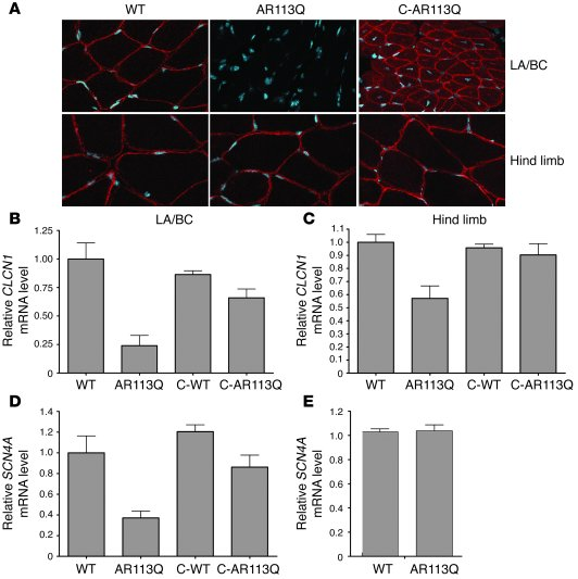 Androgen-dependent decrease of CLCN1 and SCN4A expression in AR113Q skel...