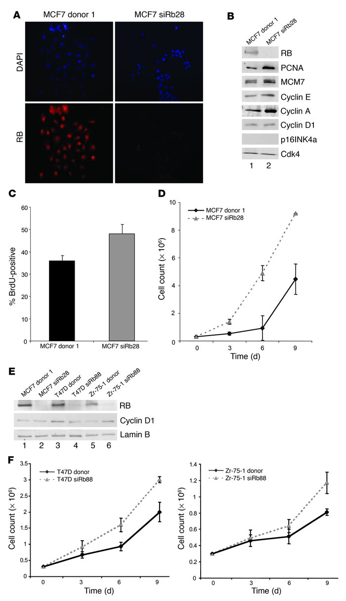 Efficient RB knockdown in breast cancer cells causes deregulation of RB/...
