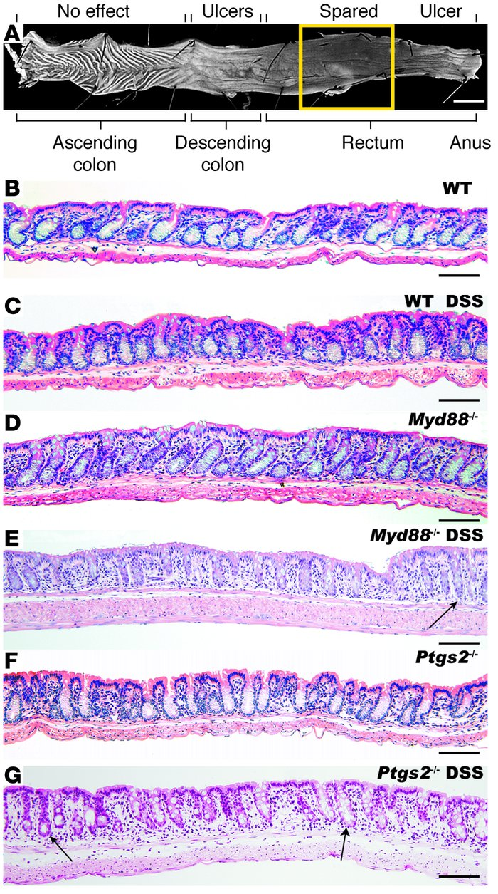 Myd88–/– and Ptgs2–/– mouse rectums were susceptible to DSS-induced inj...
