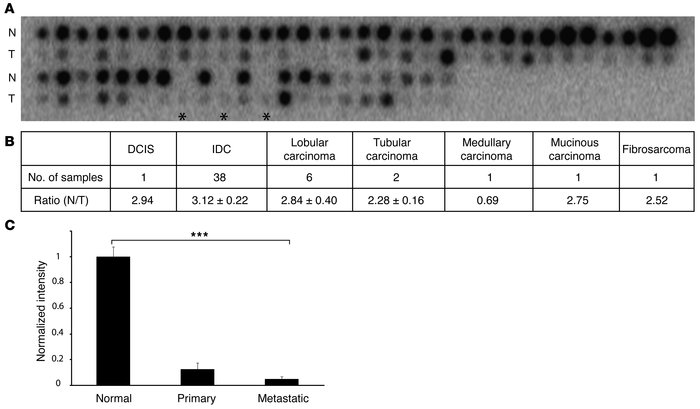 Loss of TβRIII mRNA expression during mammary carcinogenesis. (A) TβRIII...