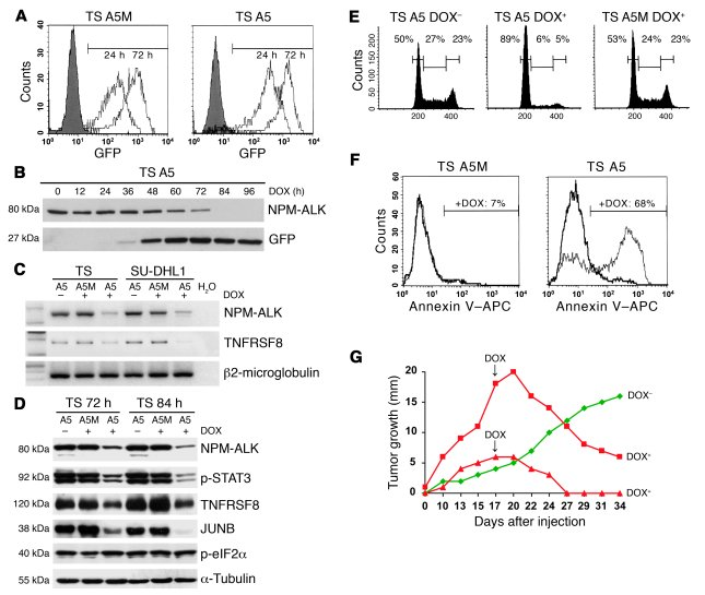 Inducible NPM-ALK knock down leads to apoptosis of ALCL cells and tumor ...