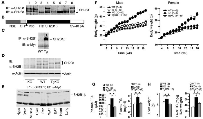 Neuron-specific restoration of SH2B1β rescues obesity and hyperlipidemia...