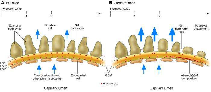 Jci The Glomerular Basement Membrane Not Gone Just Forgotten