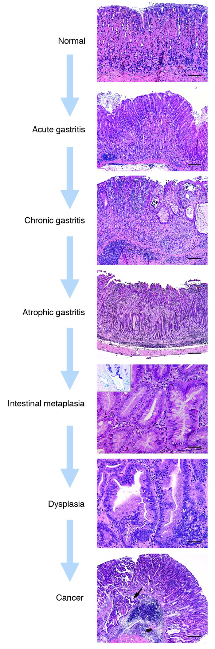 Gastric cancer histological classification, Much more than documents.