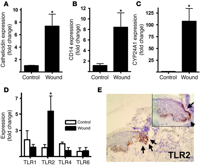 Injury triggers increased TLR2, CD14, and CYP24A1 in skin. Human wounds ...