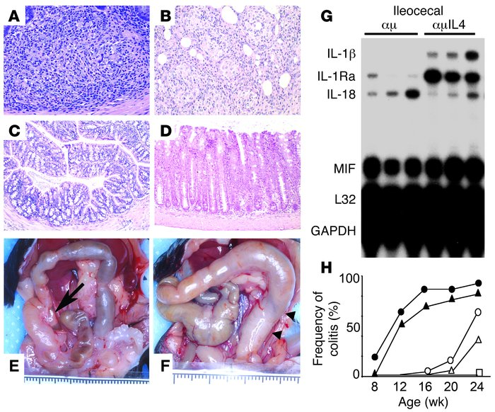 Development of intestinal inflammation–associated granulomas in the abse...