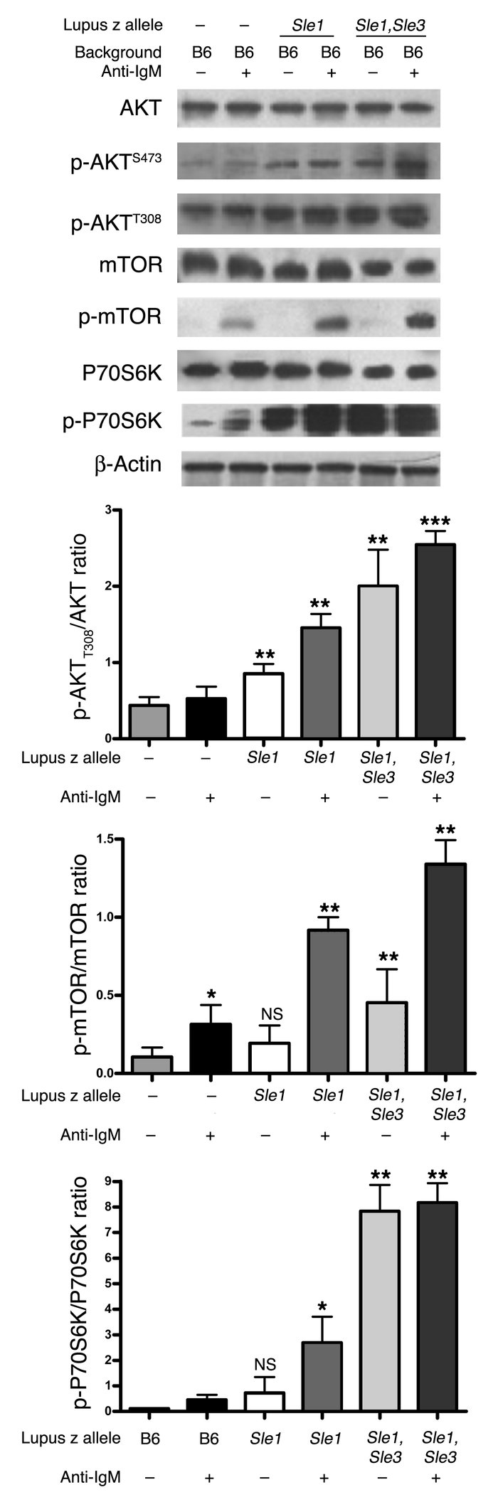 Activation status of AKT/mTOR axis in lupus B cells. Anti-B220 bead-puri...