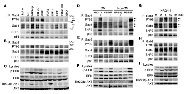 Gab1 and Gab2 are engaged in coordination of NRG-1β/ErbB signaling pathw...