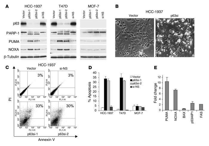 Endogenous p63 is required for survival in breast cancer cells. (A) Knoc...