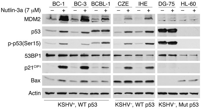 Nutlin-3a activates p53 and its target genes in PEL cells. KSHV-infected...