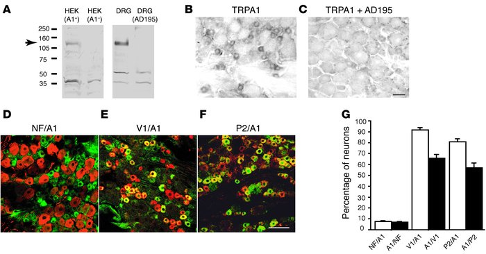 The antibody detected TRPA1 in rat DRG neurons. (A) The TRPA1 antibody r...