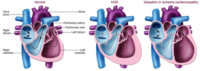 Schematic representation of changes in the cardiac chambers of an indivi...